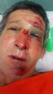 Fue a pedir un remís y recibió una brutal golpiza