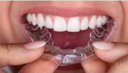 Bruxismo: qué señales indican que apretamos los dientes al dormir