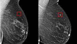 Una IA detecta si una mujer desarrollará cáncer de mama en el futuro
